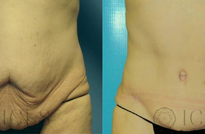 Full Abdominoplasty with Flank Liposuction