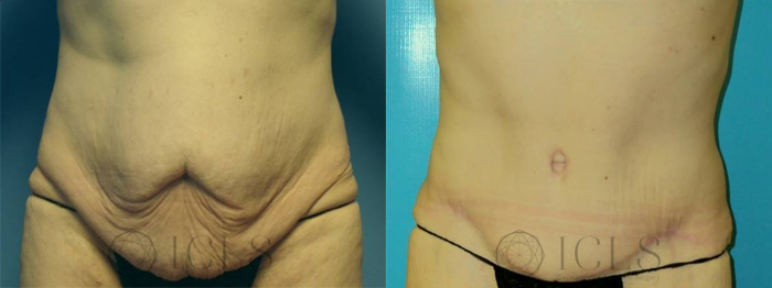 Full Abdominoplasty with Flank Liposuction